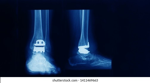 anteroposterior and lateral foot and ankle x-ray showing total ankle replacement or arthroplasty in a patient with severe traumatic osteoarthritis. dark background.