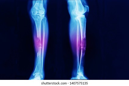anteroposterior and lateral leg x-ray showing advanced stage bone cancer at tibia with pathologic fracture. the patient need surgery with wide excision and bone reconstruction.