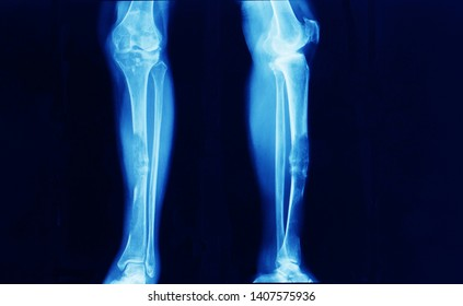 anteroposterior and lateral leg x-ray showing advanced stage giant cell tumor at tibia with pathologic fracture. the patient need wide excision with bone reconstruction.
