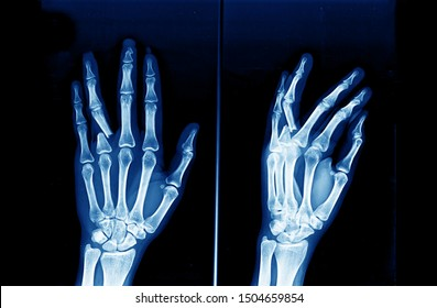 Anteroposterior and oblique view of hand and wrist x-ray showing closed fracture of proximal phalanx of left ring finger causing displacement and deformity. Hand injury.