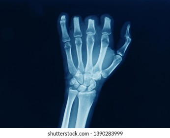 an anteroposterior radiograph or x-ray of a hand showing multiple traumatic amputation of fingers after an accident.