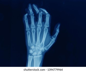 an anteroposterior radiograph or x-ray of a hand showing multiple open fracture of fingers and tendon tear after a work injury.