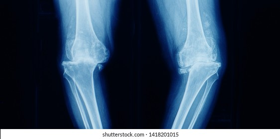 Anteroposterior x-ray of both knee showing severe osteoarthritis with varus angulation and lateral subluxation of knee joint. Bow legs. Total knee replacement or arthroplasty is needed.