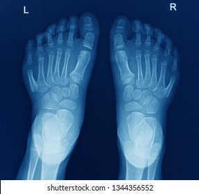an anteroposterior x-ray or radiograph of both feet showing abnormal sixth toe on both side of foot. this congenital defect is called polydactyly.