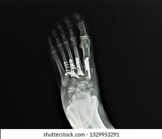 an anteroposterior x-ray or radiograph of foot showing good alignment after open reduction internal fixation (ORIF) for fracture and dislocation of midpart of the foot or Lisfranc injury