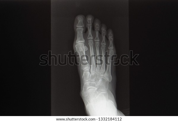 Anteroposterior Xray Radiograph Foot Showing Normal Stock Photo Edit Now 1332184112