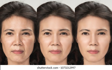 Anti Aging process, Asian woman face skin with anti-aging procedures, rejuvenation, lifting, tightening of facial skin, restoration of youthful skin anti-wrinkle. Old and young concept.