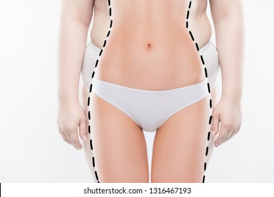 Anti faddy folds obesity therapy. Cropped close up photo of chummy fatty body wearing big-sized panties skin with stretch marks sagged and dry isolated on white background
