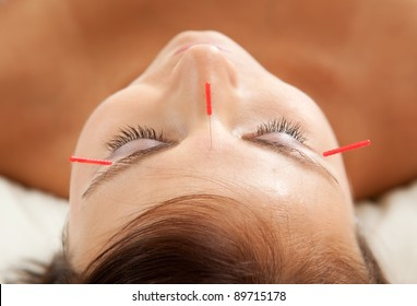 Anti-aging acupuncture treatment on young attractive female patient