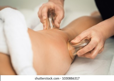 Anti-cellulite massage of the hips with the use of vacuum cans (jars, banks).