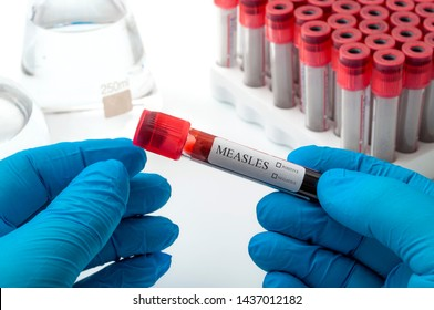 The anti-vaccination movement, contagious disease and the antivaxer campaign concept theme with doctor, nurse or phlebotomy technician holding blood sample in a test tube, being tested for Measles