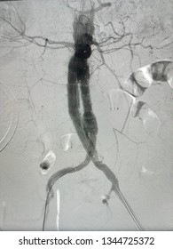 Aorta angiogram showed that stent graft were deployed at infrarenal abdominal aortic aneurysm and common iliac artery aneurysm in Endovascular Aortic Aneurysm Repair (EVAR) proceder