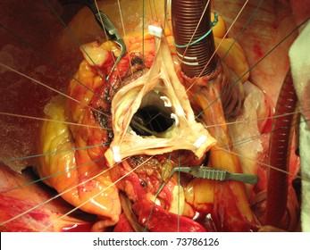 The aortic valve sparing operation for ascending aortic aneurysm