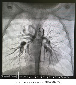 Aortography showed Major aortopulmonary collateral arteries (MAPCAs) in pediatric