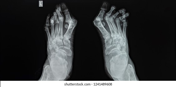 AP radiograph of both feett on dark background. The film shown hallux valgus deformity with medial bunion. The film shown lesser toes deformity such as crossover toes