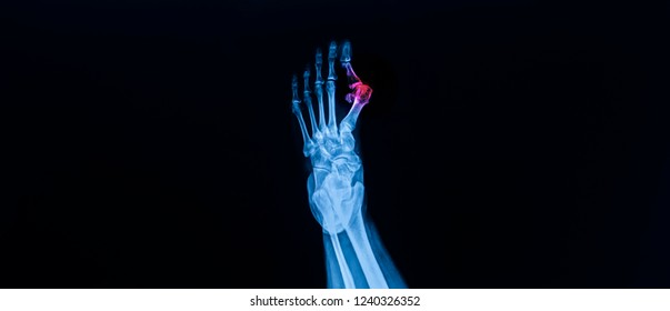 AP radiograph of left foot on dark background. The film shown hallux valgus deformity with medial bunion . The hallux values angle was increase. Blue tone color and red hi light at lesion