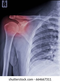 AP view of Right shoulder's x-ray, Rt shoulder subluxation cause by trauma