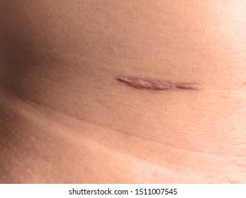 Appendicitis scar on the body