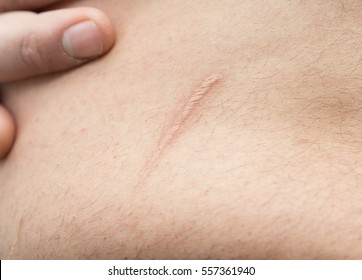 appendicitis scar on the man's stomach