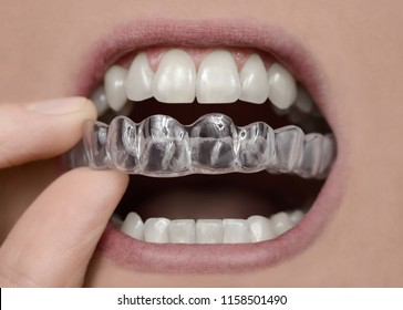 Applying braces retainer mouth guard teeth care
