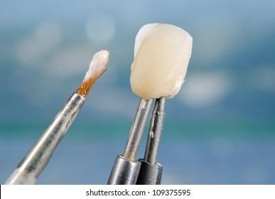 applying ceramic material on crown, dental technology