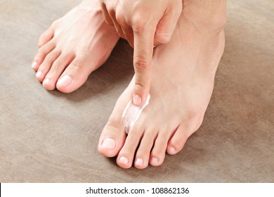 Applying a cream for athlete's foot treatment.Close up.