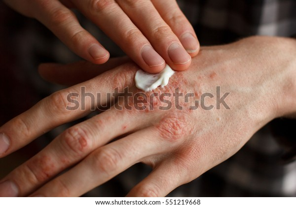 applying an emollient to dry flaky skin as in the treatment of psoriasis, eczema and other dry skin conditions