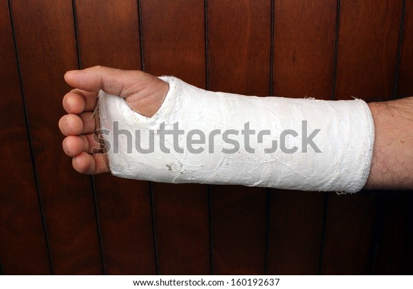 arm in plaster