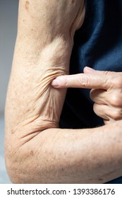 Arm of a senior citizen woman.