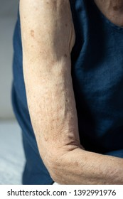 Arm skin of old woman
