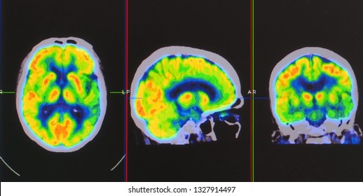 an array of positron emission tomography or PET images showing many phase of brain perfusion function and activity