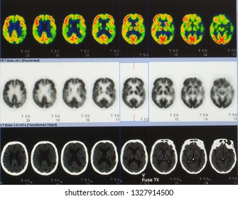 an array of positron emission tomography or PET image showing many phase of brain perfusion function and activity