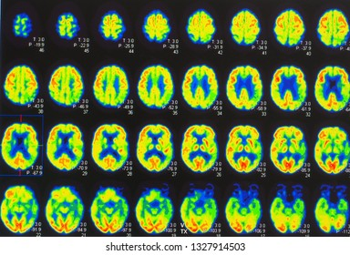 an array of positron emission tomography or PET image showing many phase of brain perfusion function and activity.
