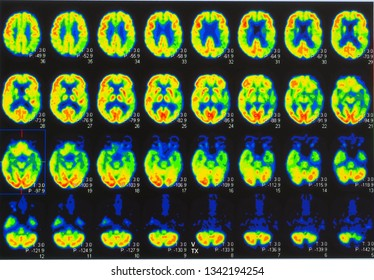 an array of positron emission tomography or PET images showing many phases of brain perfusion function and activity