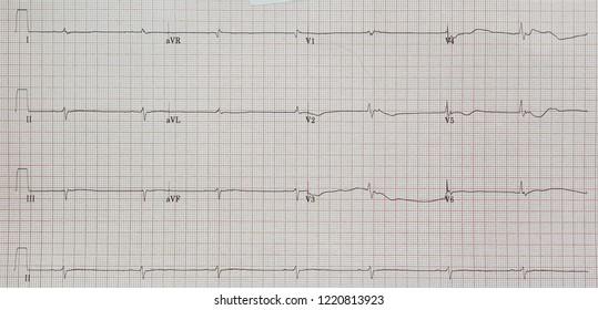 Arrhythmogenic right ventricular dysplasia/cardiomyopathy. ARVD. Low voltage. Epsilon wave.