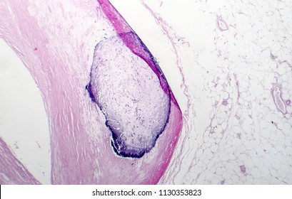 Artery calcification, narrowing of artery, light micrograph, photo under microscope
