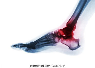 Arthritis of ankle . X-ray of foot . Lateral view . Invert color style . Gout or Rheumatoid concept .