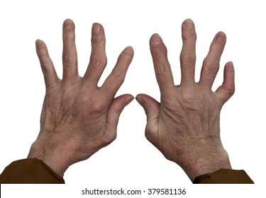 Arthritis of the hands.