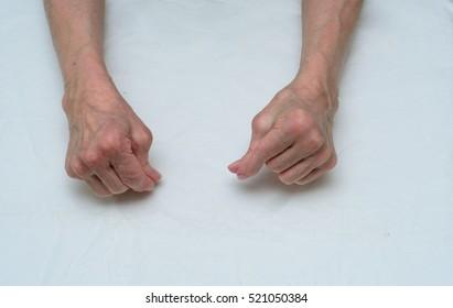 arthritis of the hands in elderly women