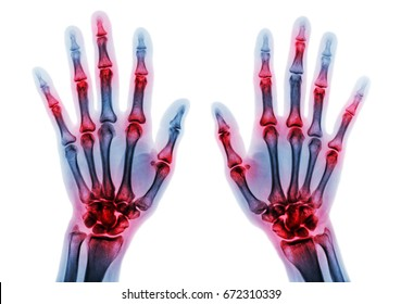 Arthritis multiple joint of fingers . Film x-ray of both hands and wrists .