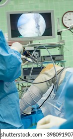 Arthroscopic ACL reconstruction