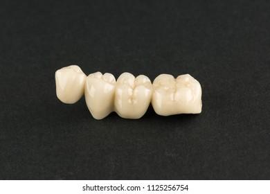 artificial dental structures made of ceramics for restoration of dentition