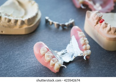 Artificial replacement teeth on a dark surface