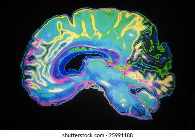 Artificially Colored MRI Scan Of Human Brain