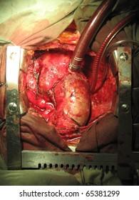 Ascending aorta aneurysm during the surgery