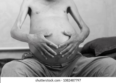 ascites in man, holds his belly with his own hands