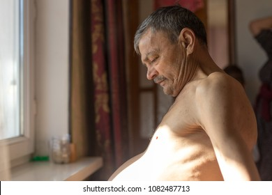 ascites in a person sitting near the windows