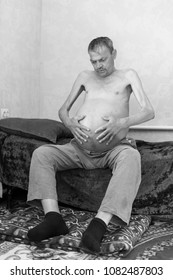 ascites in a person sitting on a sofa