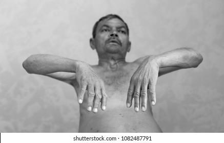 ascitic disease in man