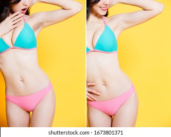 asia beauty woman wear bikini with armpit hair removal problem - before and after concept